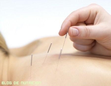 La acupuntura, ¿una solución o un problema?