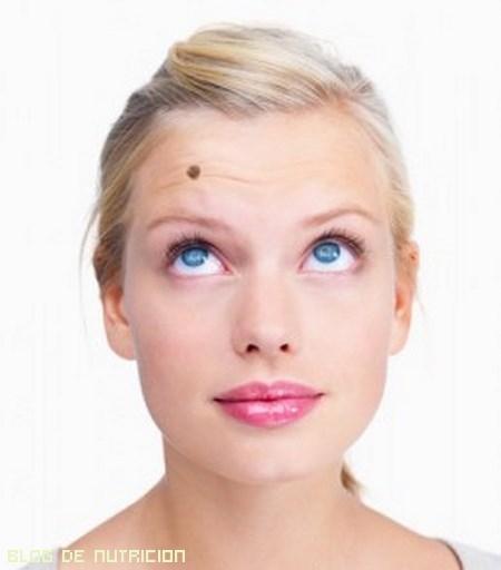 consejos para tratar las verrugas